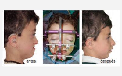 Distracción del Tercio Medio. Paciente con Síndrome Apert de 9 años de edad