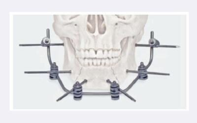 Nuevo fijador externo X-Fix para la mandíbula