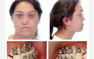 Distractor intraoral KLS Martin en el tratamiento de la Hipoplasia Maxilar Secuela de Fisura Palatina