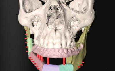 Reconstrucción Mandibular y Rehabilitación Implantológica inmediata mediante  Planificación Virtual 3D