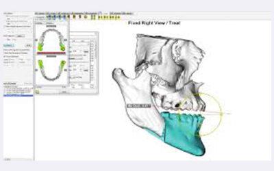 Taller Planificación 3D en Cirugía Ortognática (dentro del XI Congreso SVMCOM)