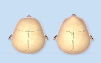 Técnica quirúrgica para el tratamiento de la craneosinostosis con el uso del Sistema SonicWeld Rx