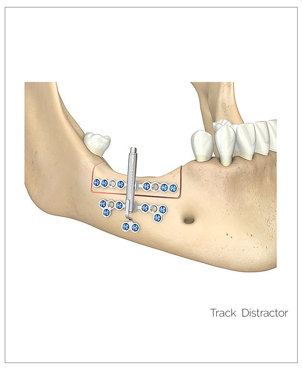 Distractores. Mandible